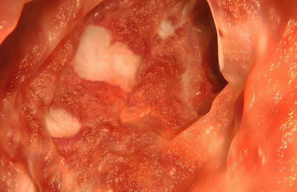 Crohn's and Colitis ulcerosa