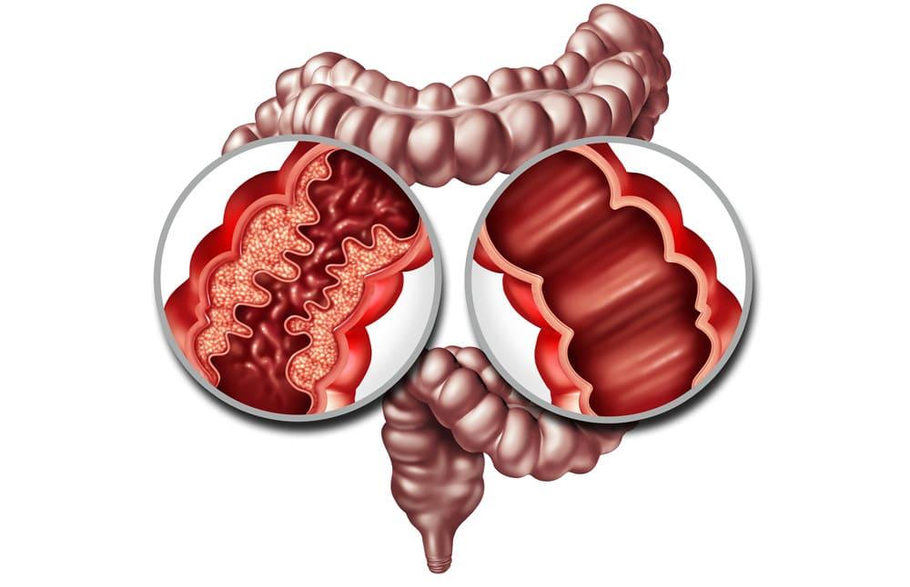 Crohn's and Colitis intestine graphic